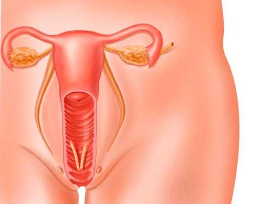 blødning uden for menstruation