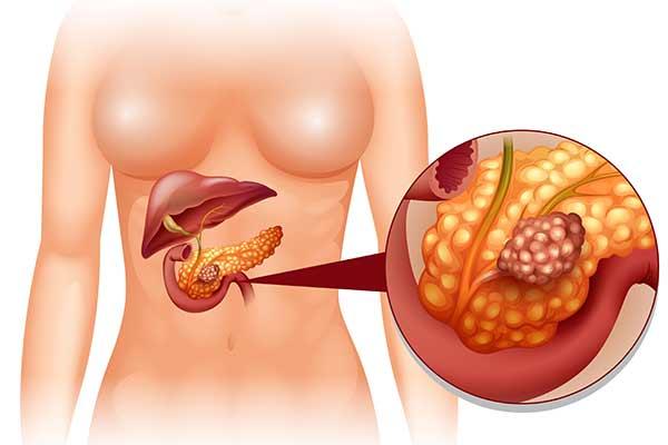 rumlen i maven kræft