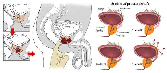 prostatakræft dødelighed
